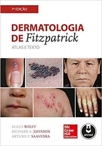 Dermatologia de Fitzpatrick (Wolff) - 7. ed. PDF